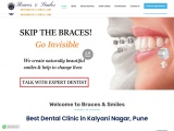 Best Dental Doctor in Pune | Best Dentist in Pune | Dental Doctor in Pune