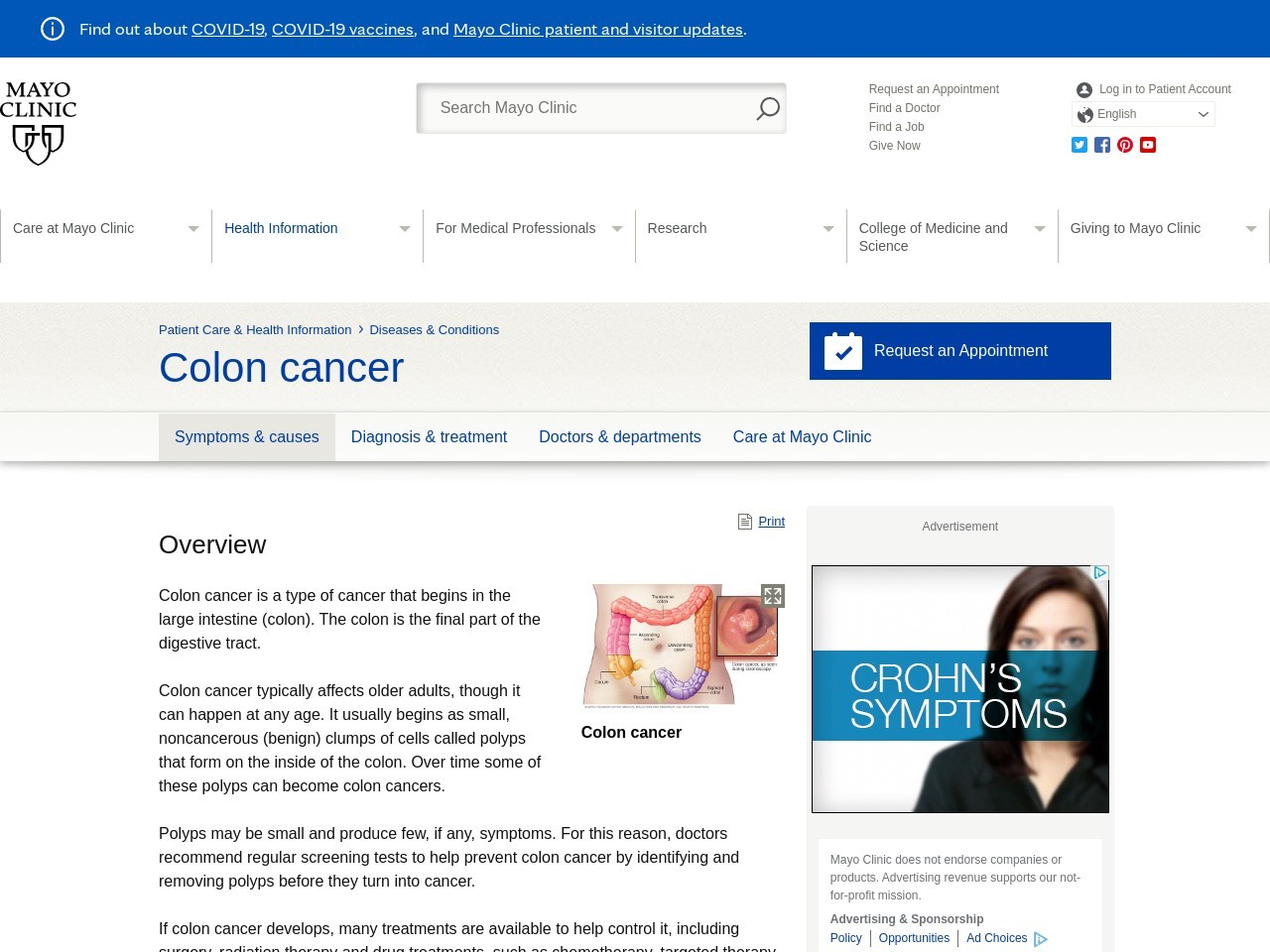 Colon cancer — learn how to protect yourself