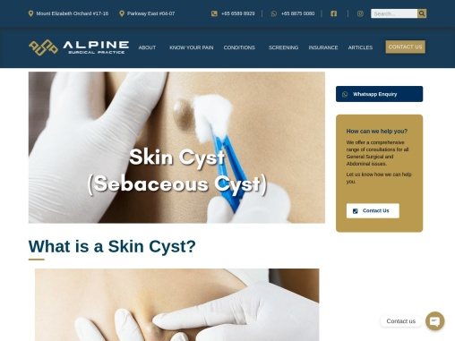 Cyst Removal Singapore