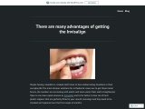 There are many advantages of getting the Invisalign