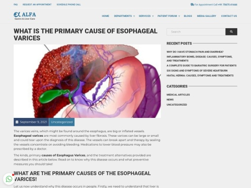 What is the Primary Cause of Esophageal Varices