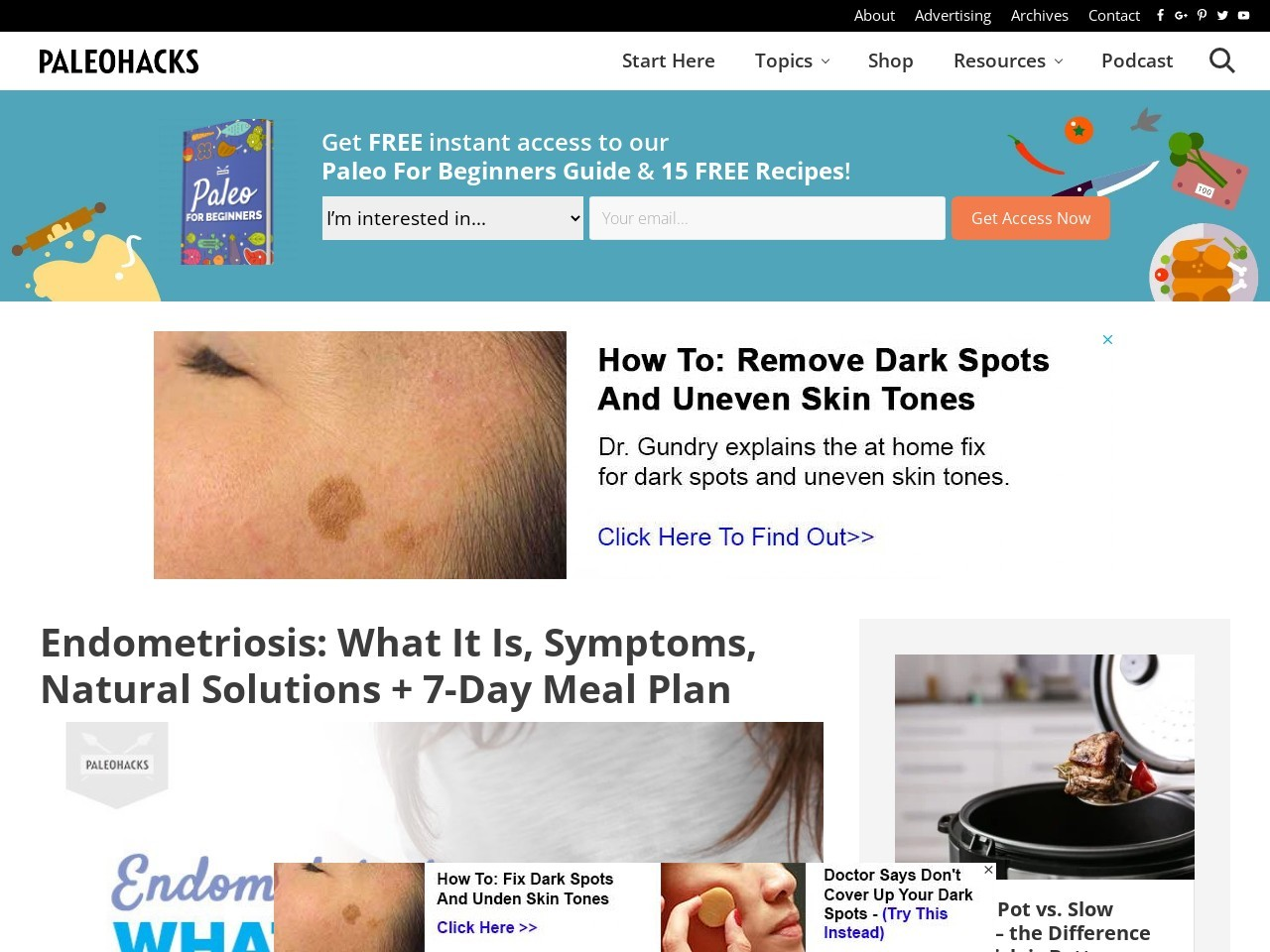 Endometriosis: What It Is, Symptoms, Natural Solutions + 7-Day Meal Plan