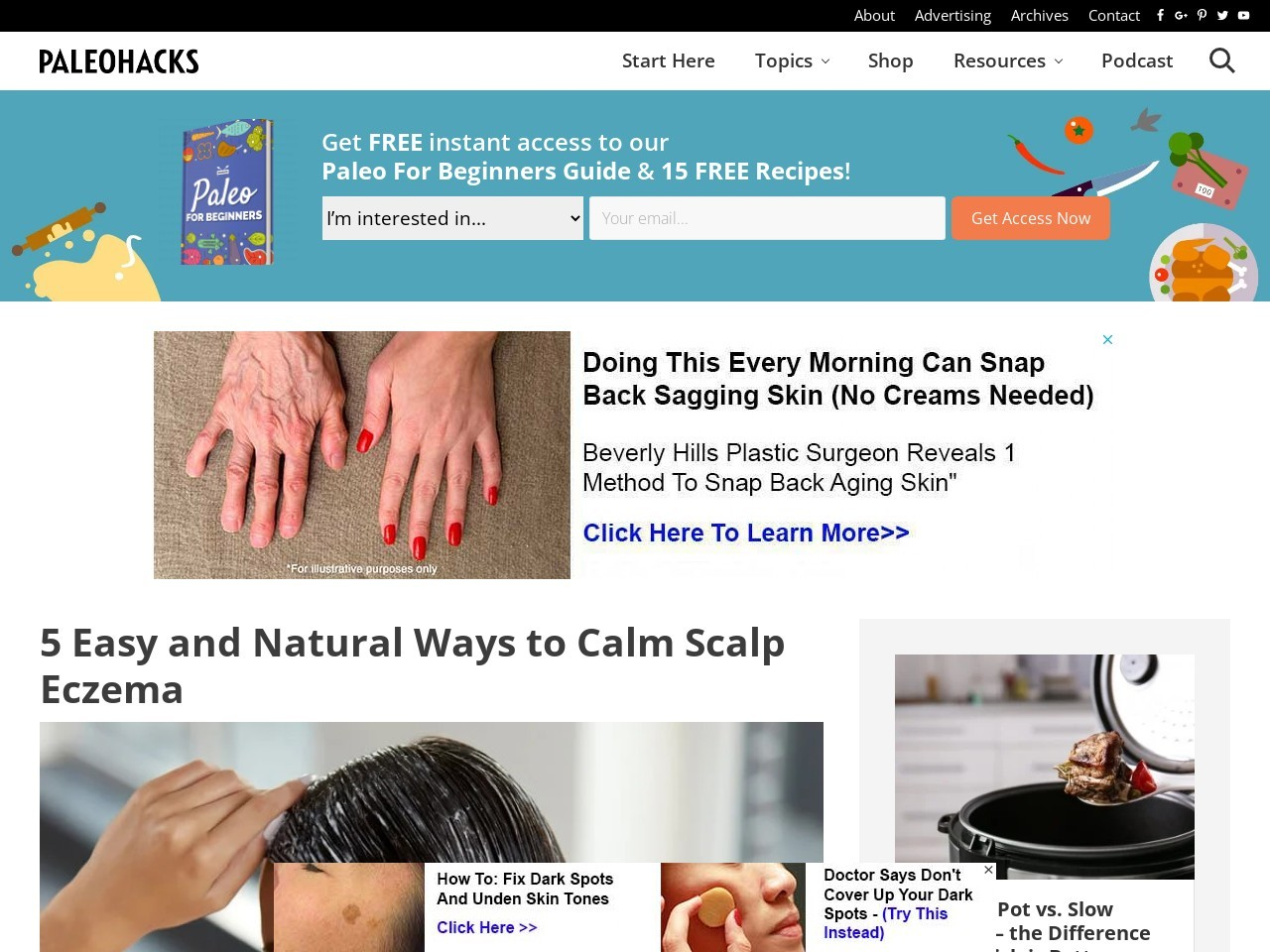 5 Easy and Natural Ways to Calm Scalp Eczema