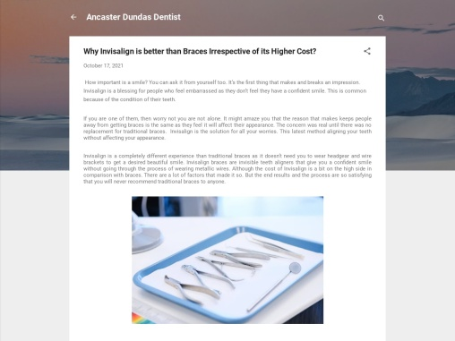 Why Invisalign is better Choice than Braces?