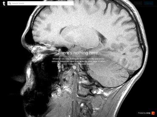 Major Benefits of leasing Printers for your Business