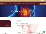 Esophageal Cancer Singapore