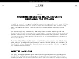 FIGHTING RECEDING HAIRLINE USING MINOXIDIL