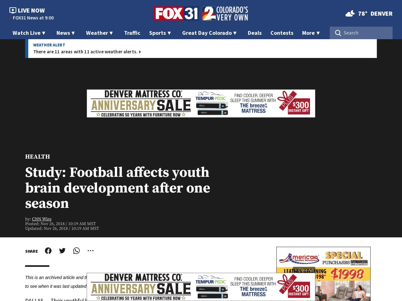 Study: Football affects youth brain development after one season