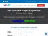 Contact Us – Liposuction cost in hyderabad – Best plastic surgeon in hyderabad
