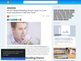 Gum Disease Treatments at Home – Why People Choose Home Remedies for Gums Treatment?