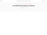 Failure of dental implants – Royal Dental Clinics Blog