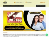 Best dental implant clinic near me in Secunderabad | Smile Dental And Implant Centre