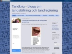 Tandställning blogg