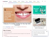 5 Reasons To Consider Invisalign For Your Gap Teeth Treatment