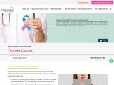Thyroid cancer Treatment in Chennai