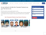 Book an appointment with hair transplant near me