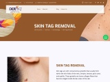 Laser Skin Tag Removal Treatment In Hyderabad | Dermiq Clinic