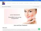 Acne and Scar Treatment in Navi Mumbai