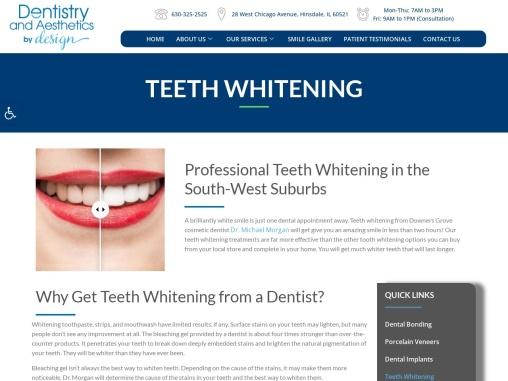 Burr Ridge Teeth Whitening   Teeth Whitening Services Hinsdale IL