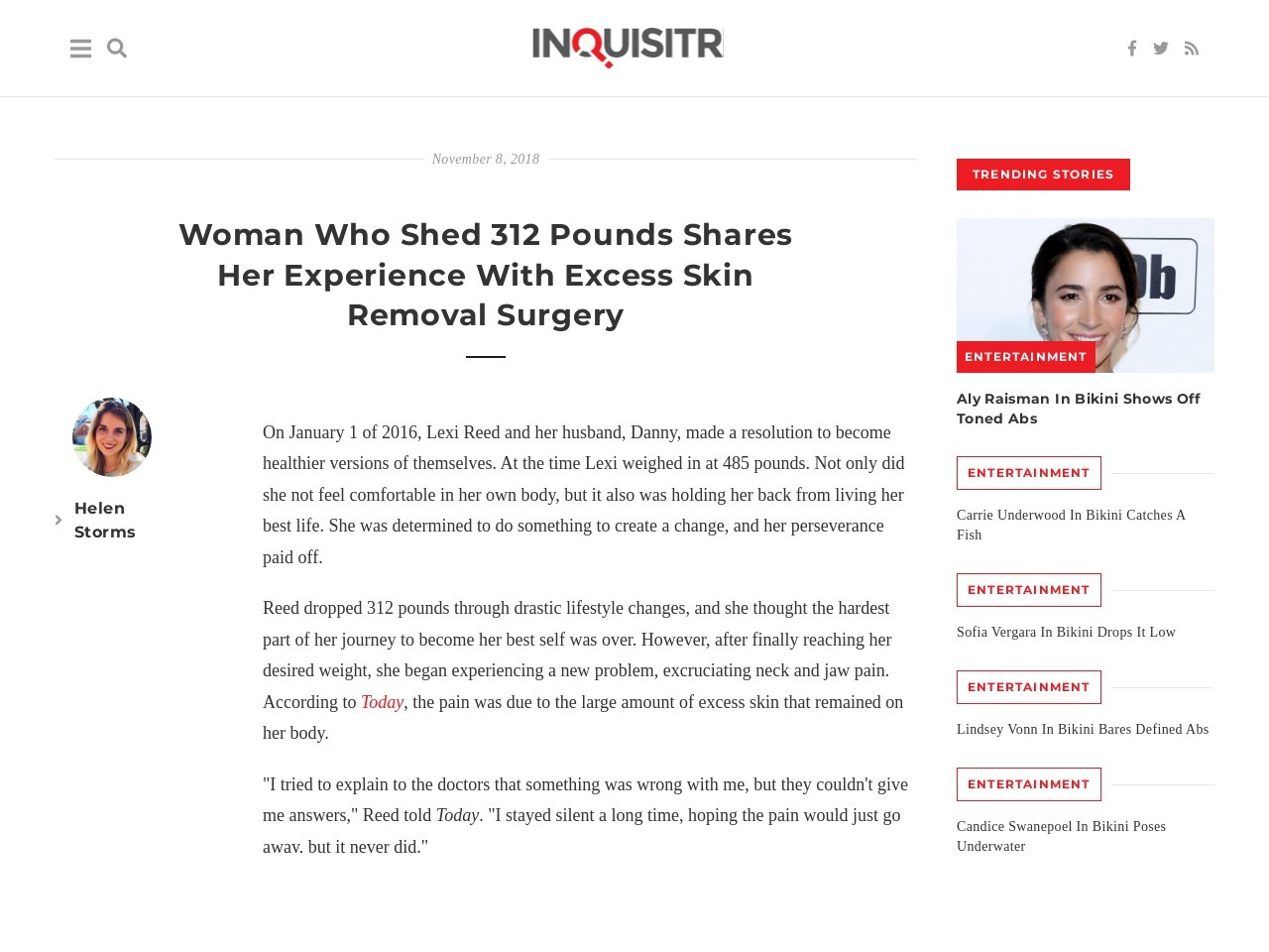 Woman Who Shed 312 Pounds Shares Her Experience With Excess Pores and skin…