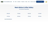 Men's Hair Transplant Before and After Gallery