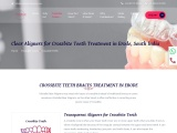 Orthodontic Dental Treatment for Misaligned Teeth In India