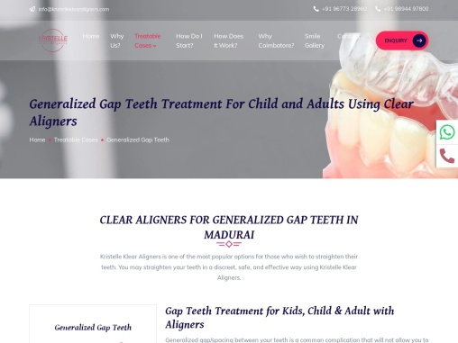 Gap Teeth Braces Aligners Treatment in Coimbatore