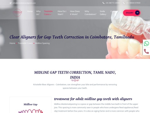 Clear Aligners for Gap teeth Correction in Coimbatore