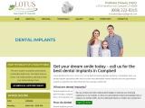 Affordable Dental Implants In Campbell | Lotus Dental Group