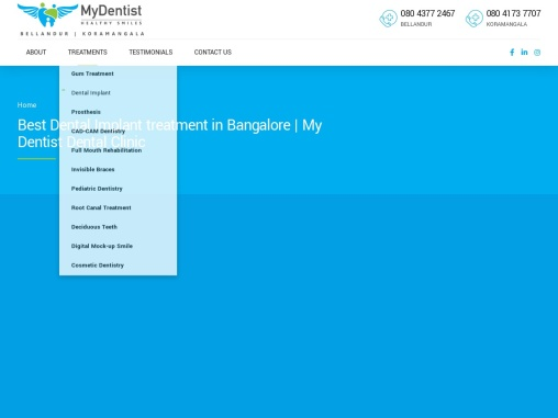 Best Dental Implant Treatment in Bangalore– MydentistNow Complete Dental Solution