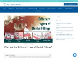 What are the Different Types of Dental Fillings?