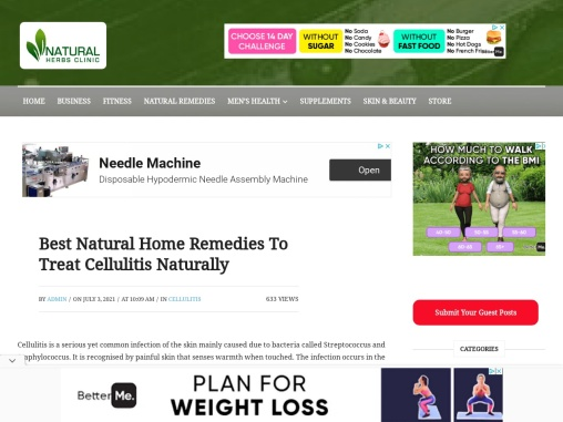 Best Natural Home Remedies To Treat Cellulitis Naturally