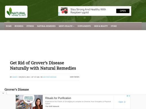 Get Rid of Grover's Disease Naturally with Natural Remedies