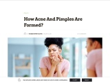 How Acne And Pimples Are Formed?