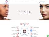 FUT Vs FUE Hair Transplant in Ahmedabad