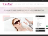 Laser Hair Removal Treatment in Ahmedabad
