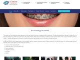 Best Orthodontists in Hyderabad   Orthodontist Specialist in India