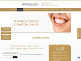 Veneers for a Gummy Smile – Fixing a Gummy Smile – The Welbeck Clinic