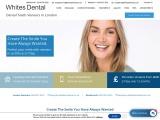 Best Dental Veneers in the London
