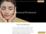 Laser Scar Removal Treatment | You By Sia